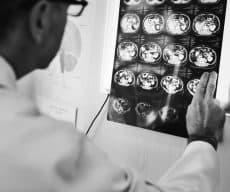 כיצד לתבוע את הביטוח הסיעודי לאחר אבחון במחלה נוירולוגית