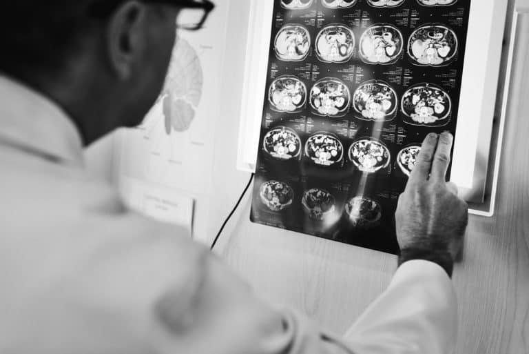 מחלה נוירולוגיתעורך דין תביעות סיעוד